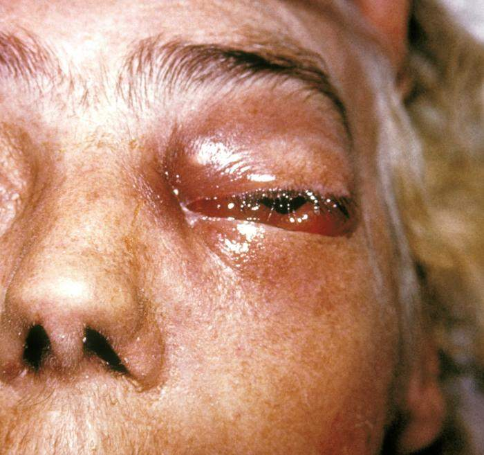 Mucormycosis: Fungal infection